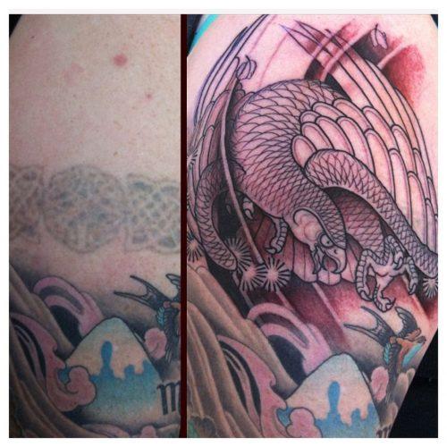 quitar tatuaje antes y despues (1)