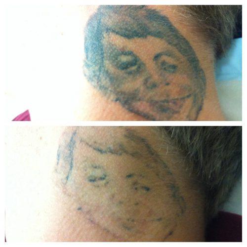 quitar tatuaje antes y despues (2)