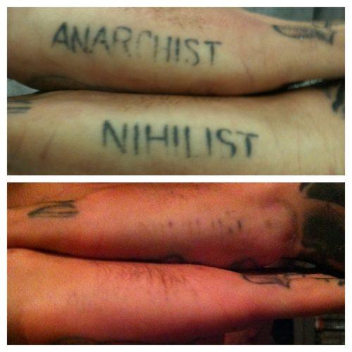 quitar tatuaje antes y despues (3)