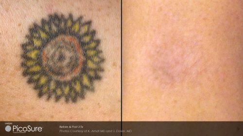 quitar tatuaje antes y despues (5)