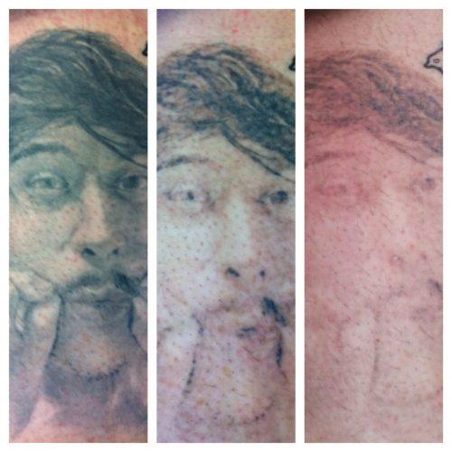 quitar tatuaje con laser (17)