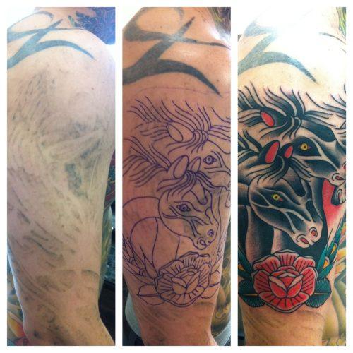 quitar tatuaje con laser (18)
