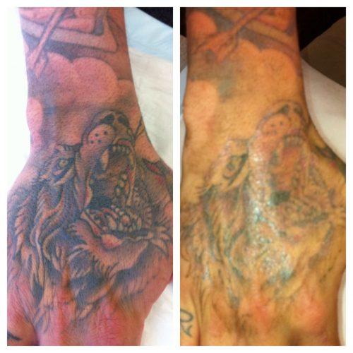 quitar tatuaje con laser (19)