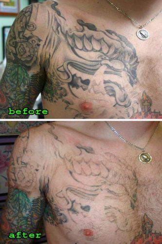 remover tatuaje con laser (1)