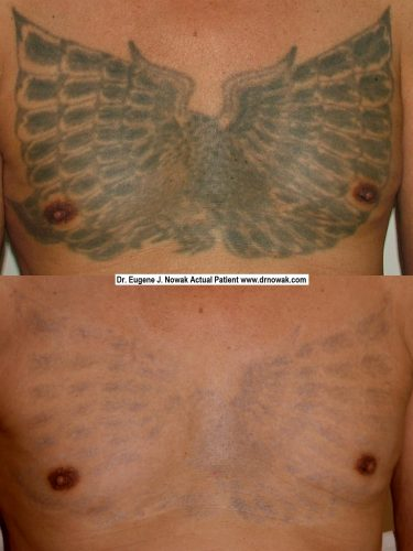 remover tatuaje con laser (4)