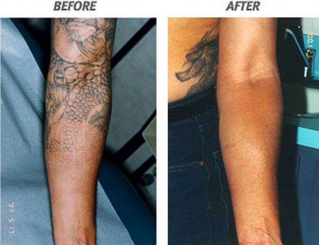 tatuajes quitados