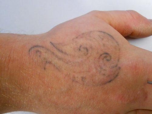 tatuajes quitados con laser (2)